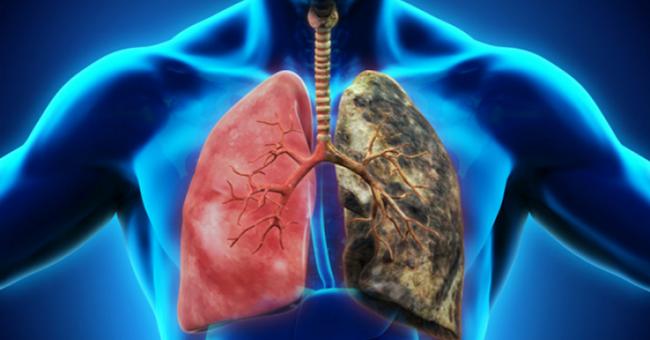 Tüdőrák kolozsvári